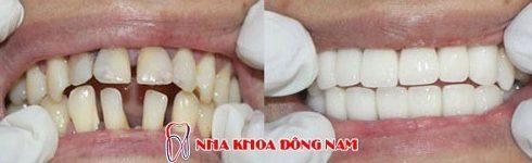 Kỹ thuật bọc răng sứ theo tiêu chuẩn quốc tế hiện nay 9