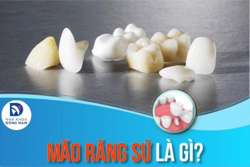 Mão răng sứ là gì? Giá bao nhiêu?
