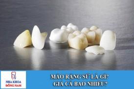 mão răng sứ là gì? giá cả bao nhiêu?