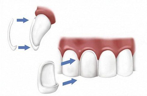 mặt dán sứ và bọc răng sứ nên chọn giải pháp nào 1