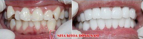 mặt dán sứ và bọc răng sứ nên chọn giải pháp nào 10
