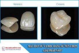 mặt dán sứ và bọc răng sứ nên chọn giải pháp nào