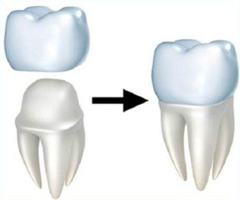 mặt dán sứ và bọc răng sứ nên chọn giải pháp nào 2
