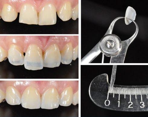 mặt dán sứ và bọc răng sứ nên chọn giải pháp nào 3