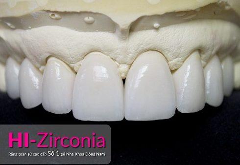 mặt dán sứ và bọc răng sứ nên chọn giải pháp nào 5