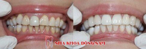 mặt dán sứ và bọc răng sứ nên chọn giải pháp nào 8