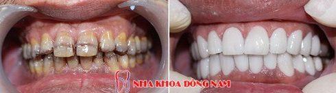 mặt dán sứ và bọc răng sứ nên chọn giải pháp nào 9
