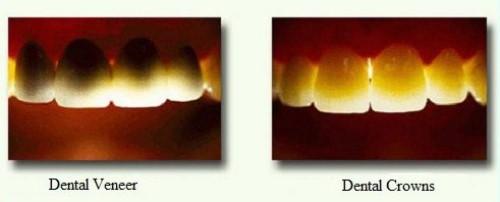 Mặt Dán Sứ Và Bọc Răng