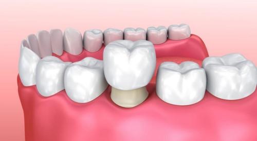 mô phỏng kỹ thuật bọc răng sứ