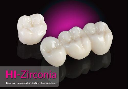 răng toàn sứ Hi-zirconia nha khoa đông nam