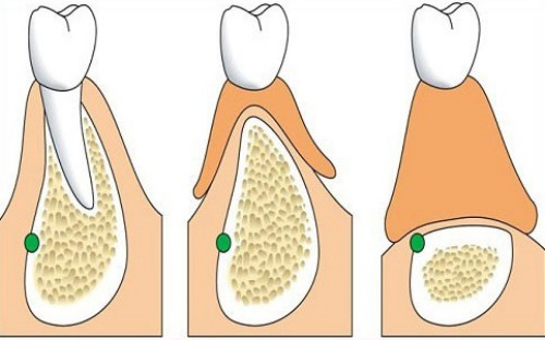 tiêu xương hàm