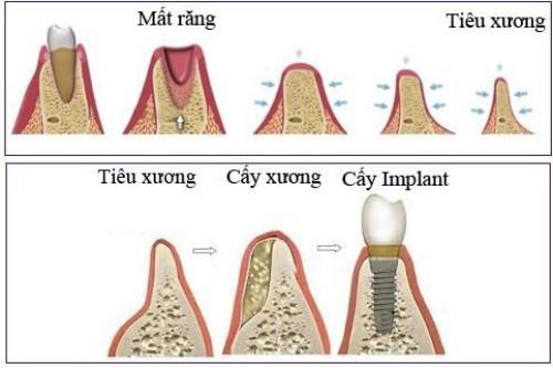 cấy implant ngăn chặn tiêu xương hàm