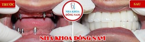 cấy implant trường hợp mất 2 hàm