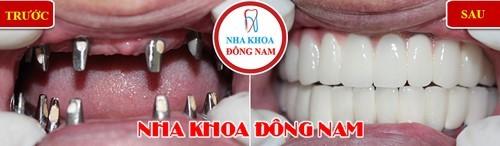 cấy implant răng mất và phục hình sứ 2 hàm