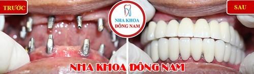 phục hình răng mất bằng implant
