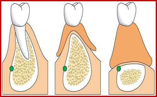 Mất hết răng thì làm răng giả như thế nào 3