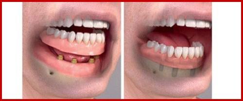 Mất hết răng thì làm răng giả như thế nào 7