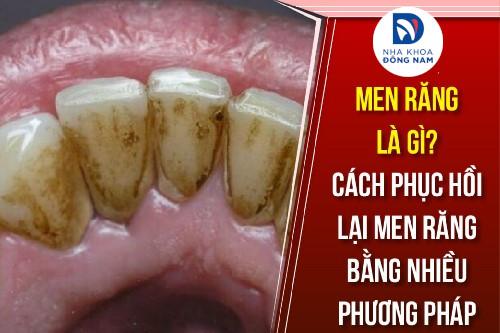 men răng là gì cách phục hồi lại men răng bằng nhiều phương pháp
