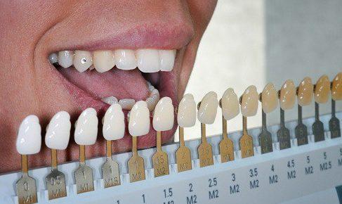 men răng là gì? cách phục hồi lại men răng bằng nhiều phương pháp 2