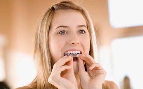 Nên ngậm thuốc trắng răng vào buổi nào 3