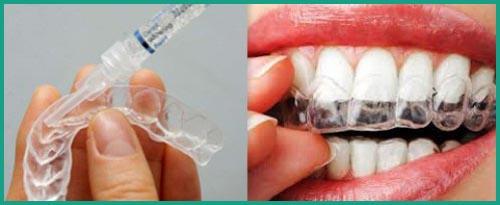 Nên ngậm thuốc trắng răng vào buổi nào 4