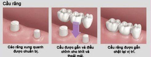 Nhổ răng rồi có làm răng giả được không 4
