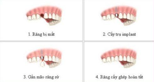 Nhổ răng rồi có làm răng giả được không 5