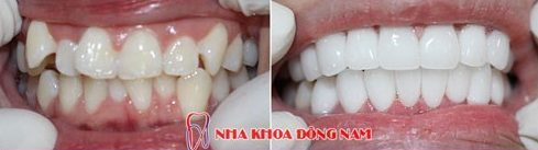Phục hình răng sứ như thế nào mới chuẩn 10