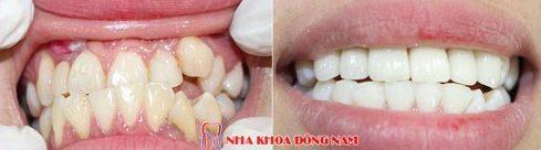 Phục hình răng sứ như thế nào mới chuẩn 12