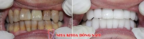 Phục hình răng sứ như thế nào mới chuẩn 8