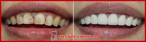 Răng bị nứt thì phải làm sao 5