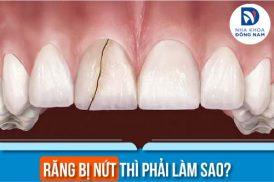răng bị nứt thì phải làm sao