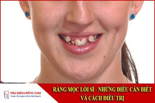 răng mọc lời sĩ - những điều cần biết và cách điều trị