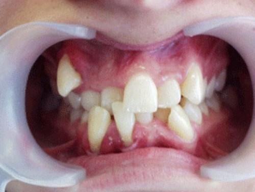 răng mọc lòi sĩ