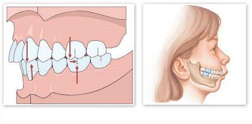 Răng vẩu là gì? Có bị di truyền không? 1