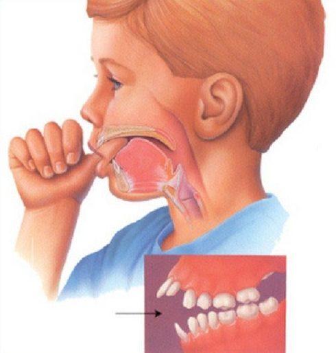 Răng vẩu là gì? Có bị di truyền không? 3