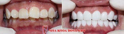 Răng vẩu là gì? Có bị di truyền không? 5