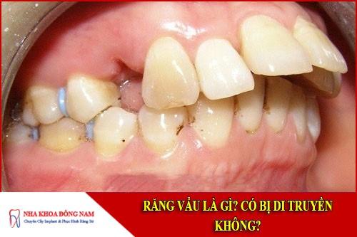 răng vẩu là gì? có bị di truyền không