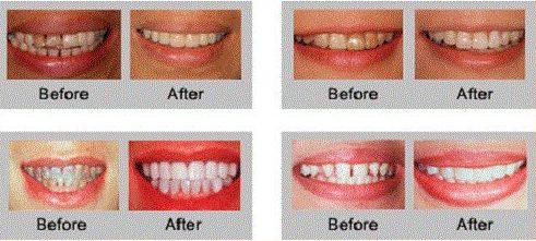 Sử dụng mặt dán răng sứ có tốt không 3