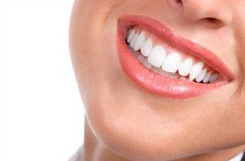 Sử dụng mặt dán răng sứ có tốt không 4