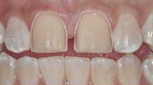 Sử dụng mặt dán răng sứ có tốt không 5