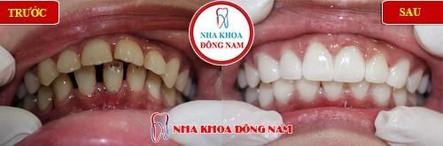 bọc sứ 2 hàm răng thưa và ố vàng