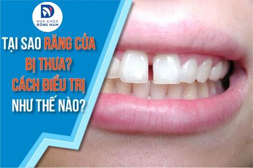 tại sao răng cửa bị thưa? cách điều trị như thế nào