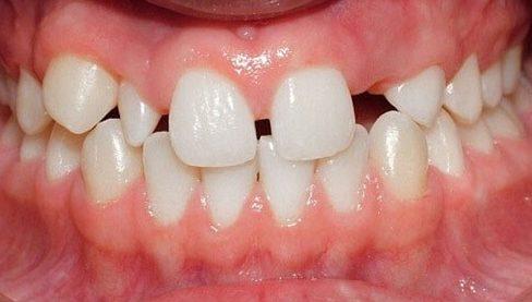 tại sao răng cửa bị thưa? cách điều trị như thế nào 1