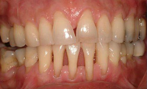 tại sao răng cửa bị thưa? cách điều trị như thế nào 2