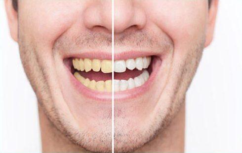 Tẩy trắng răng bằng công nghệ cao nhất hiện nay là gì 1