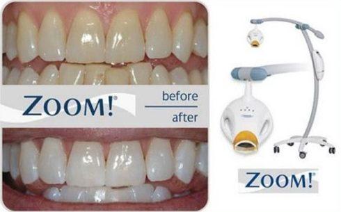 Tẩy trắng răng bằng công nghệ cao nhất hiện nay là gì 2