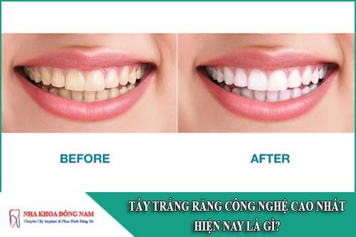 Tẩy trắng răng công nghệ cao