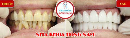 bọc sứ răng bị ố vàng