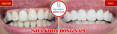 bọc sứ zirconia 2 hàm